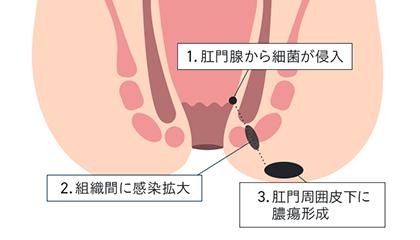 肛門周囲膿瘍とは