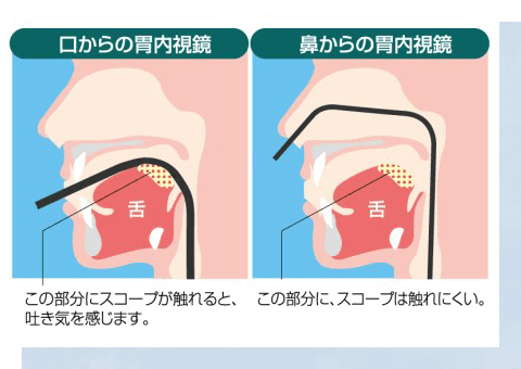 嘔吐反射のない経鼻内視鏡